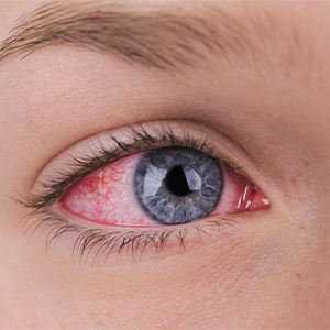 Woman With An Extremely Bloodshot Eye.